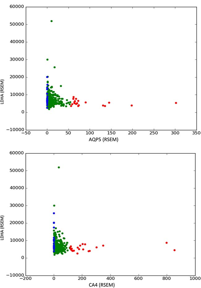 Compensatory effects of LDHA (lactate dehydrogenase) with AQP5 (aquaporin 5) and CA4 (carbonic anhydrase 4) found in prostate tumor samples.