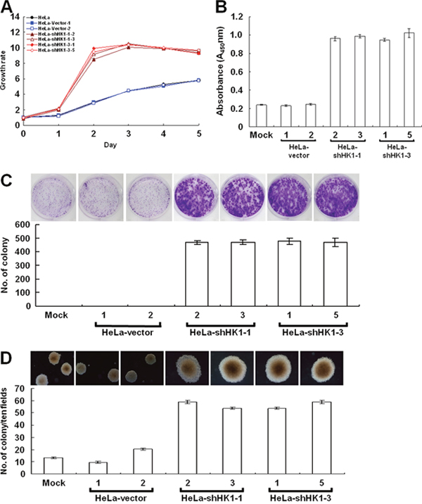 EMT phenotype caused by HK1 silencing increases cancer cell proliferation.