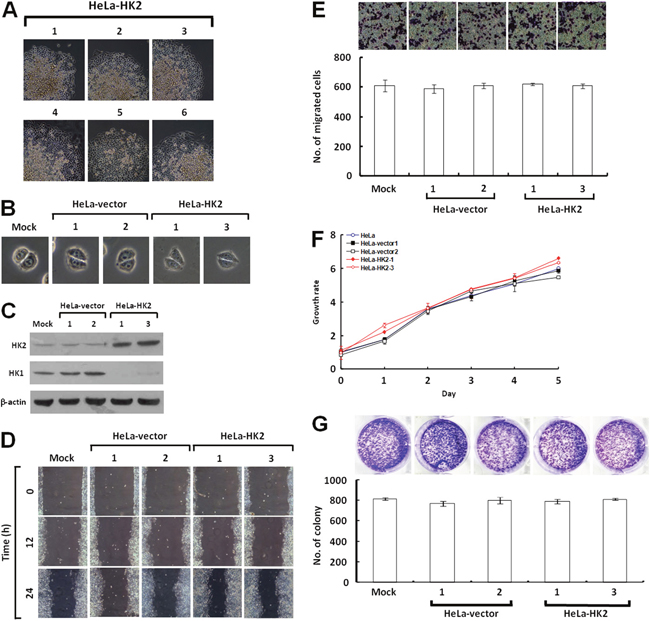HK2 overexpression does not affect tumor cell motility and growth.