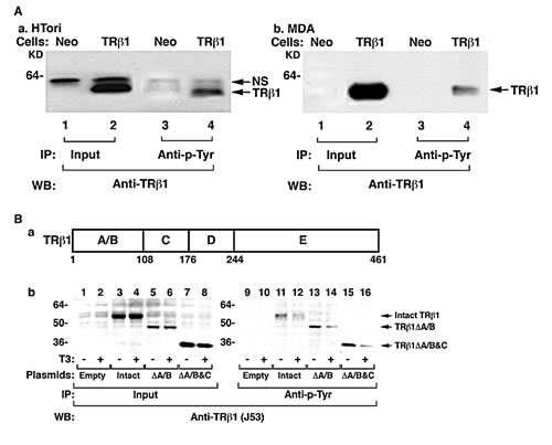 TRβ1 is phosphorylated at Tyr in human HTori and MDA breast cancer cells.