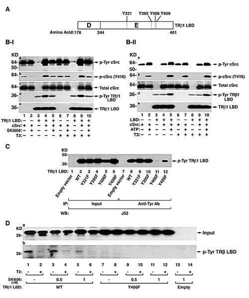 Identification of the TRβ1 domain containing cSrc phosphorylated tyrosine site.
