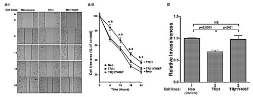Comparison of cell migration (A) and invasiveness (B) of MDA-TRβ1, MDA-TRβ1Y406F and Neo control cells.