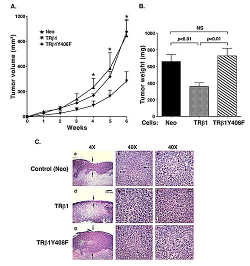Comparison of tumor growth rates of MDA-TRβ1, MDA-TRβ1Y406F, and Neo control cells.