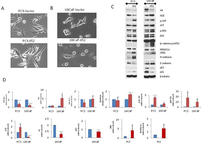 Transient transfection of miR-652 induces EMT in PC3, and NED in LNCaP prostate cancer cells.