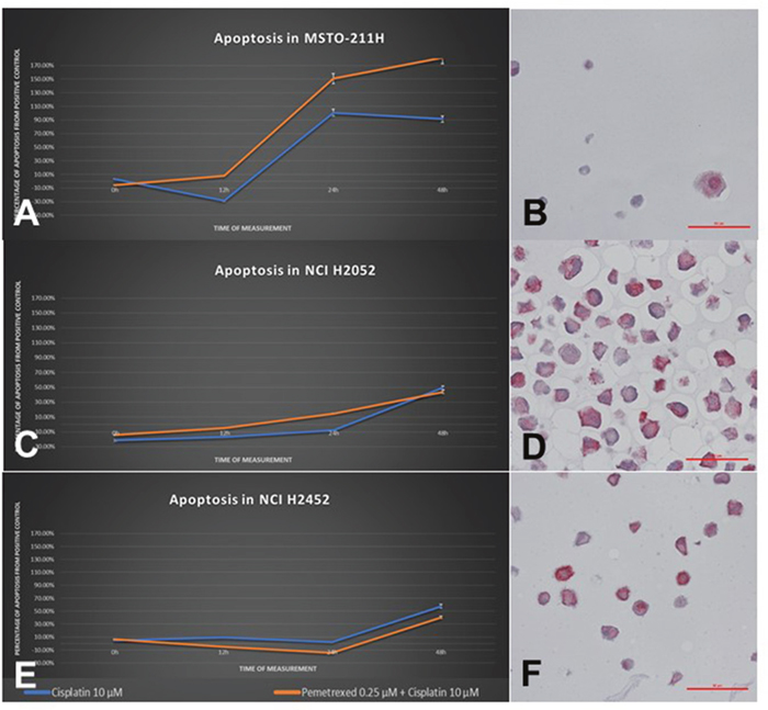 Cellular response of human MPM cell lines to treatment with cisplatin as a single agent and in combination with pemetrexed.
