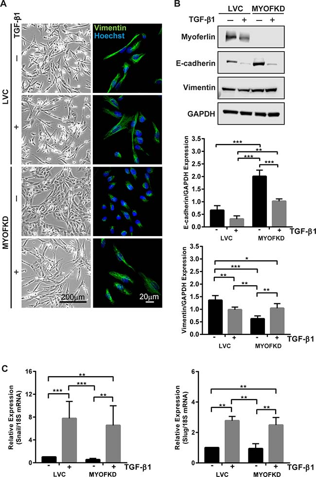 Effect of TGF-β1 treatment on cell phenotype with knockdown of MYOF (MYOFKD).
