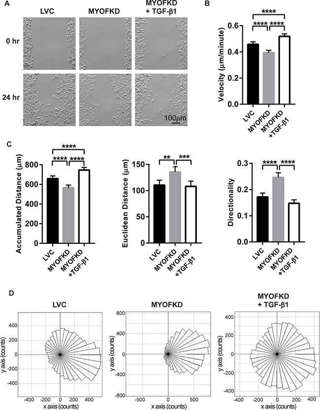 Effect of TGF-β1 treatment on cell migration.