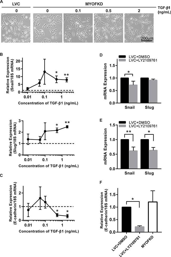 Sensitivity of cell phenotype to TGF-β signaling.