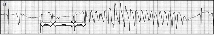 """Short-long-short"" pattern prior to triggering a TdP."