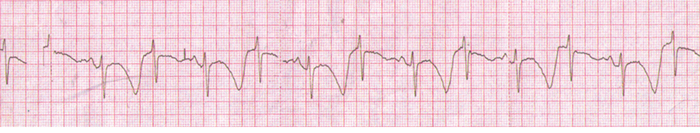 TWA in a patient with congenital long QT syndrome.