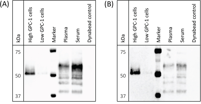 Detection of cell-surface and circulating GPC-1 isoforms by MIL-38 and 3G5.