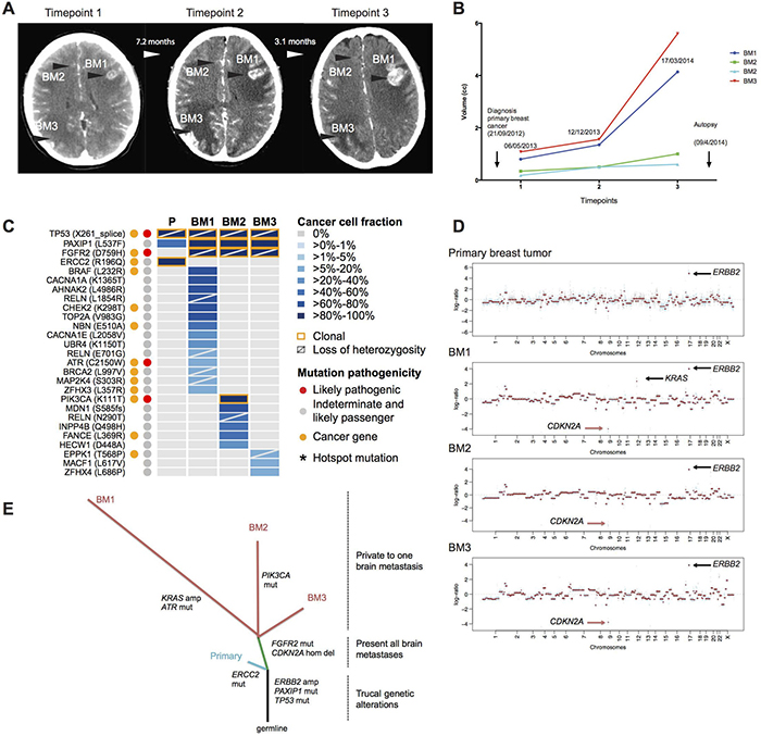 The somatic genetic alterations in the primary breast tumor and the three synchronous, spatially distinct brain metastatic lesions of the index case.