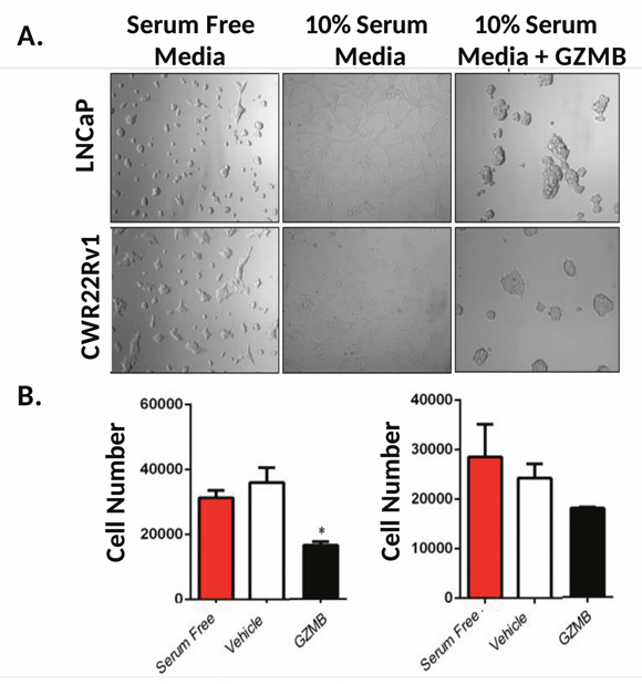 GZMB induces prostate cancer cell growth inhibition via damage to the ECM.
