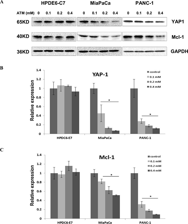YAP1 and its downstream target Mcl-1 are downregulated in MiaPaCa and PANC-1 cells, but remain intact in HPDE6-C7 cells subjected to ATM treatment.