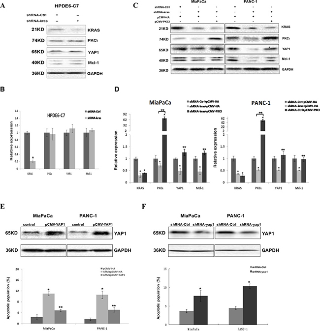 Kras-PKCι-YAP1 signaling pathway exists in Kras mutant pancreatic cancer cells and is crucial for the survival of these cells.