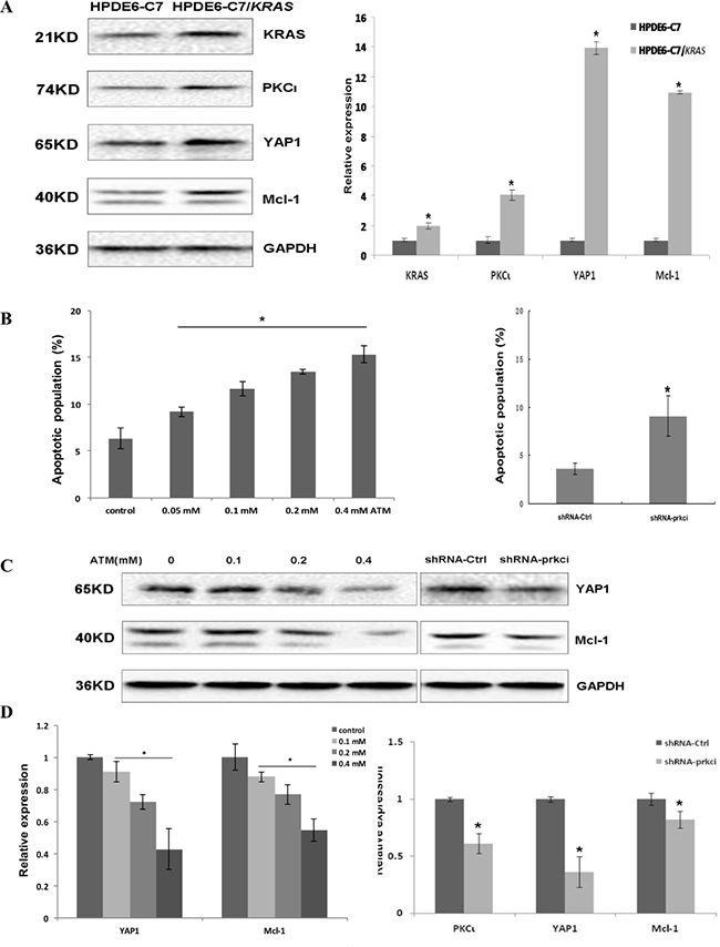 Stable transfection of HPDE6-C7 with KRASG12C renders the cells sensitivity towards PKCι inhibition.