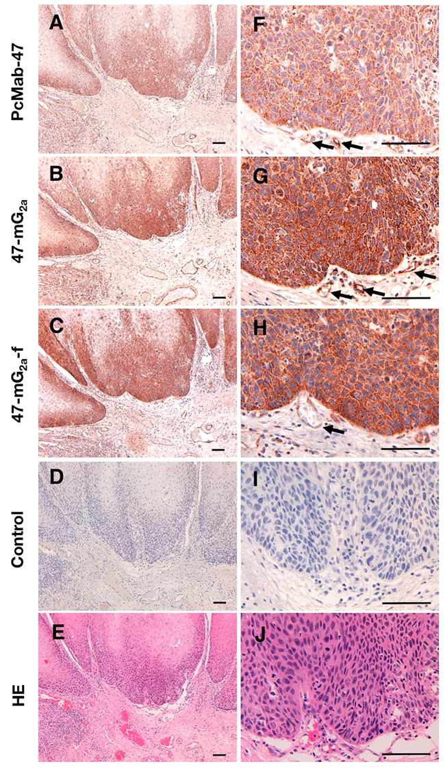 Immunohistochemical analysis of anti-PODXL antibodies in oral squamous cell carcinomas.