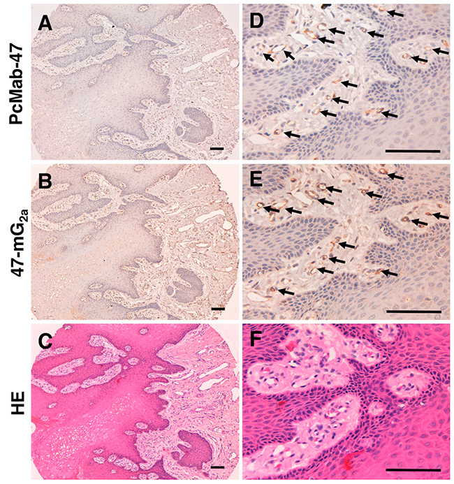 Immunohistochemical analysis of anti-PODXL antibodies in normal tongue.