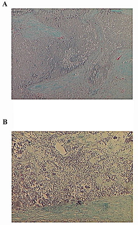 Fig.2: Mononuclear Inflammatory Infiltrates After p62 Vaccination.