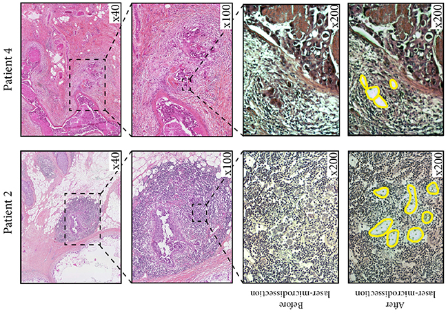 illustrates two cases of patients with in situ carcinoma and micro-invasion, for whom we performed laser-microdissection of micro-invasive cells followed by ddPCR, and found an amplified HER2 status.