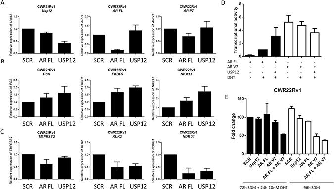 USP12 silencing promotes an AR V7 expression profile.