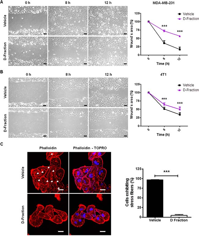 Maitake D-Fraction decreases migration of TNBC MDA-MB-231 and 4T1 cells and reduces the presence of stress fibers.