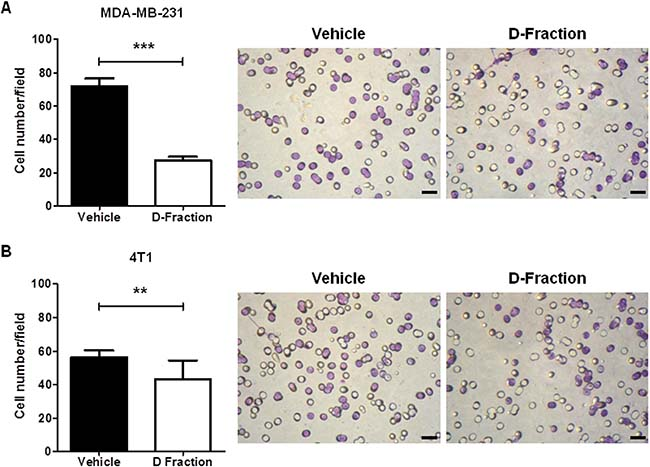 Maitake D-Fraction decreases invasion of TNBC MDA-MB-231 and 4T1 cells.