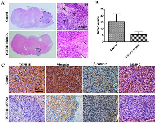TGFB1I1 promoted tumor progression in vivo.