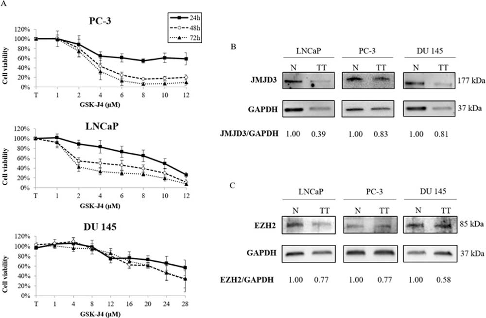 Effects of GSK-J4 or DZNeP on prostate cancer cell lines.