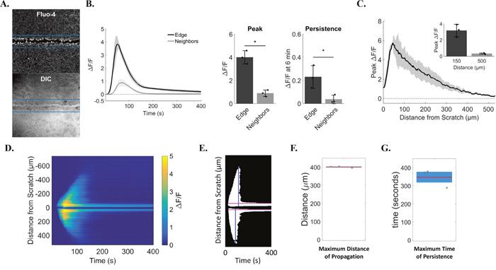 Quantification identifies cell sub-populations with distinct calcium transients.