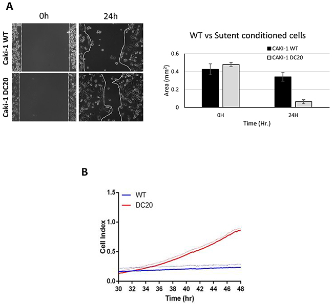 Sunitinib conditioned RCC cells show increase migration.