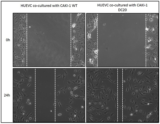 Scratch Assay of sunitinib conditioned RCC cells co-cultured with endothelial cells.