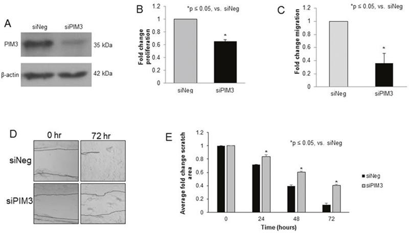 PIM3 kinase inhibition with siRNA decreased proliferation and migration in HuH6 hepatoblastoma cells.