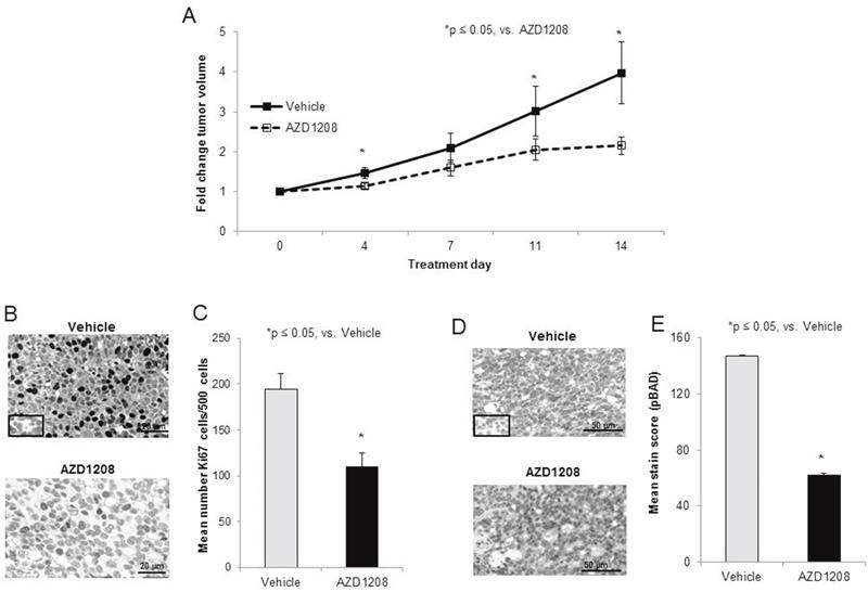 PIM kinase inhibition decreased tumor growth in a xenograft model of hepatoblastoma.