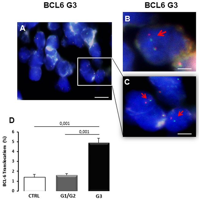 BCL6 translocation in bioptic samples of control (CTRL), G1/G2 and G3 breast cancer samples.