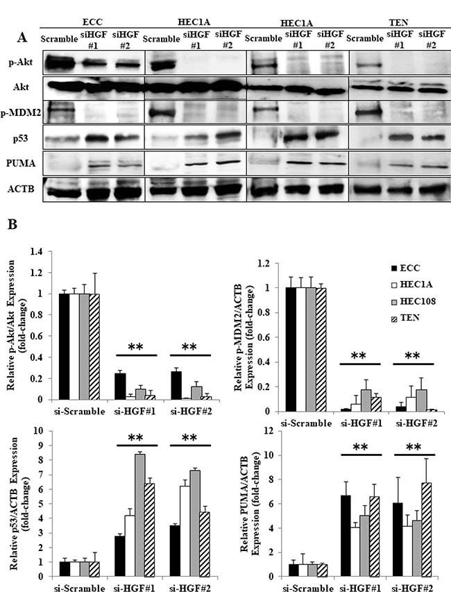 The inhibition of autocrine HGF/Met signaling induced p53-related apoptosis in endometrial cancer cell lines.