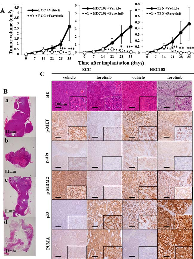 Foretinib treatment inhibits the growth of endometrial cancer cell xenografts.