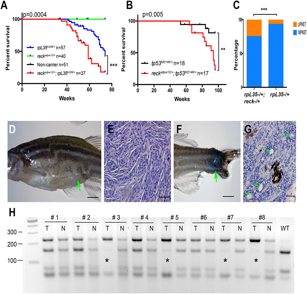 Reck is a tumor suppressor gene in zebrafish MPNSTs.