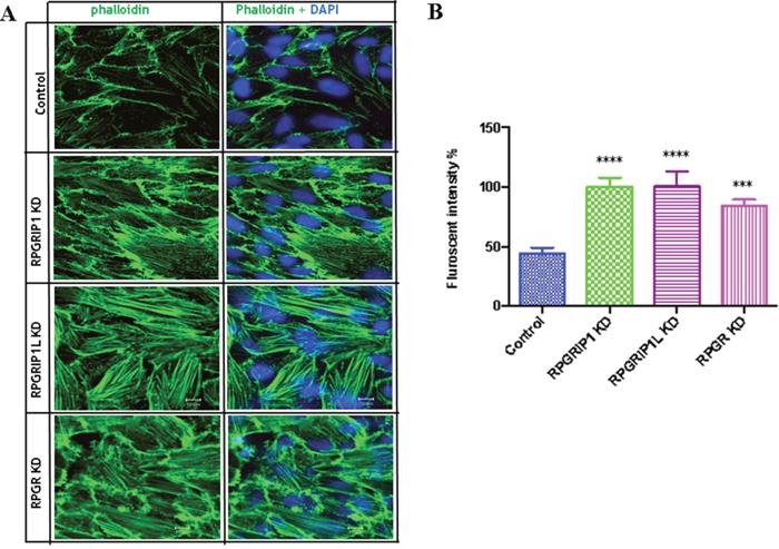 RPGRIP1, RPGRIP1L or RPGR knockdown (KD) cells showed stronger actin filaments.
