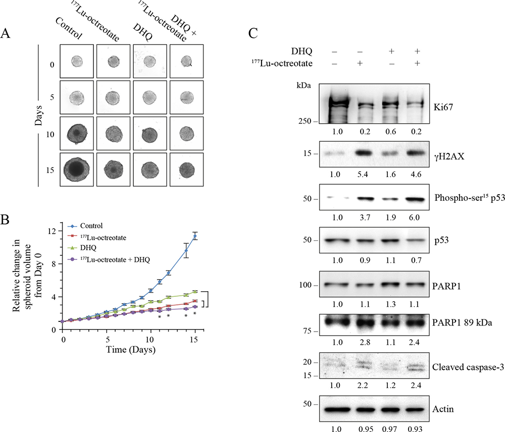 Effect of 177Lu-octreotate and PARPi on NCI-H727 cell spheroids.