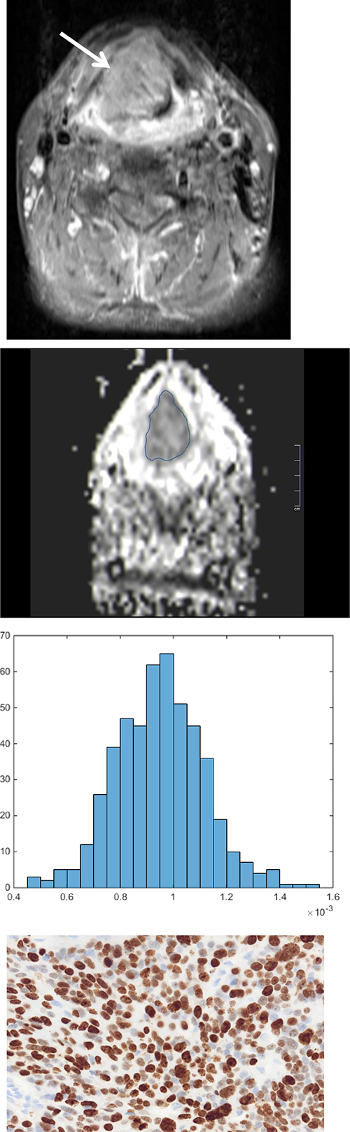 ADC histogram analysis parameters and histopathological findings in a large oral/oropharynx squamous cell carcinoma.