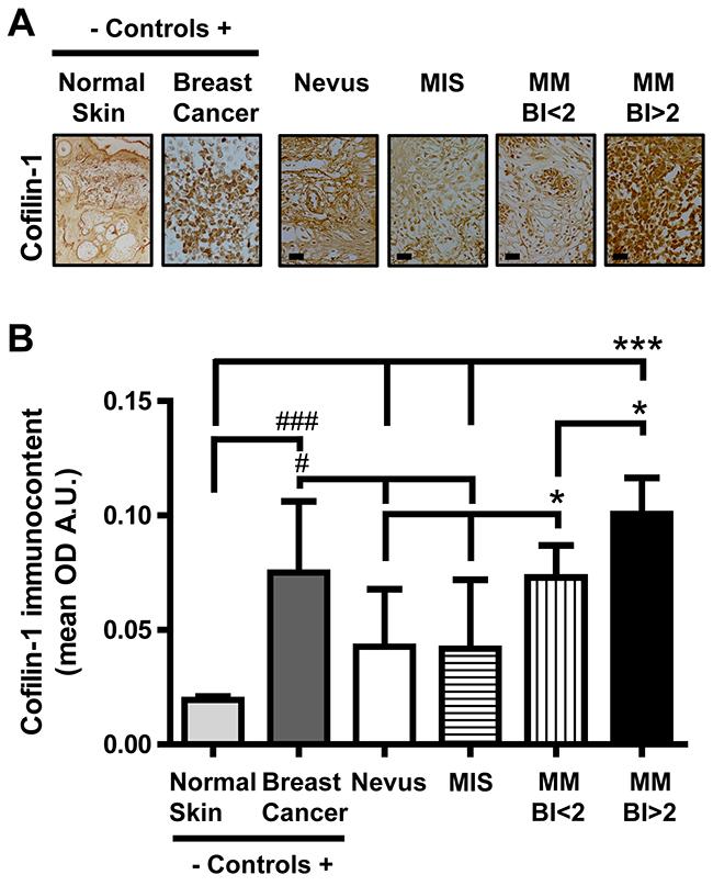 Cofilin-1 immmunocontent in benign and malignant melanocytic lesions.