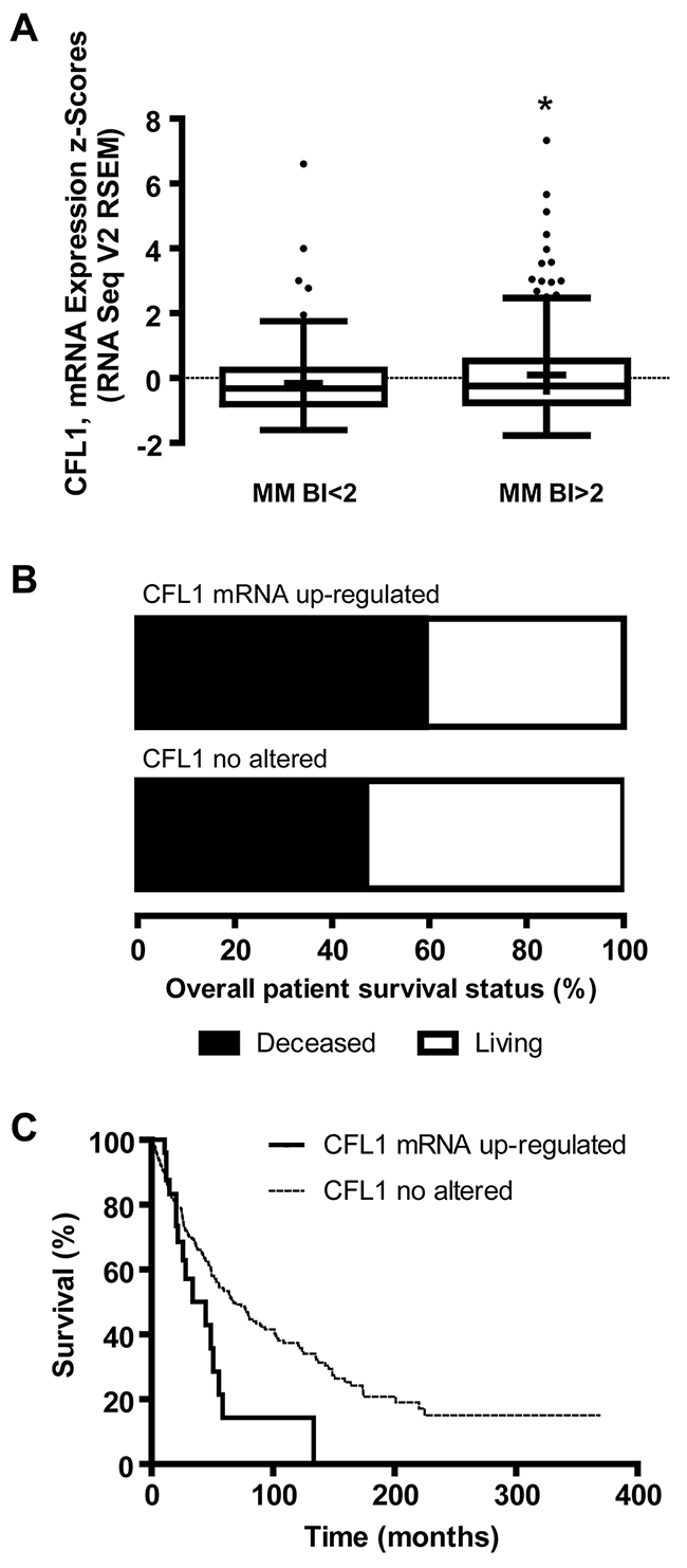 Cofilin-1 mRNA (CFL1) expression, BI and overall patient survival analyzed from TCGA melanoma data set.