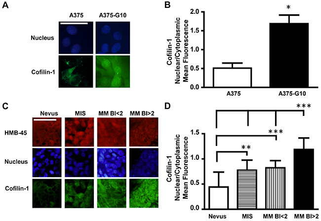 Cofilin-1 showed both cytoplasmic and nuclear localization in more aggressive melanomas.
