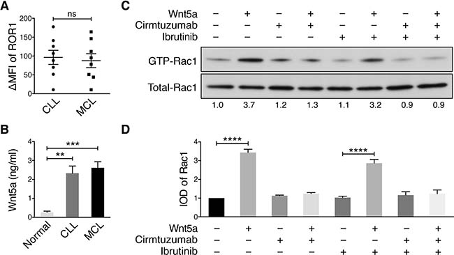 Cirmtuzumab inhibits Wnt5a-Induced Rac1 activation in ibrutinib-treated MCL cells.
