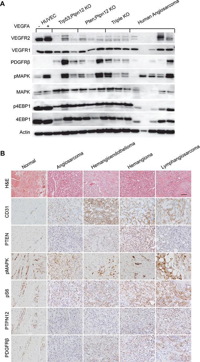 Murine angiosarcomas closely mimic human disease.