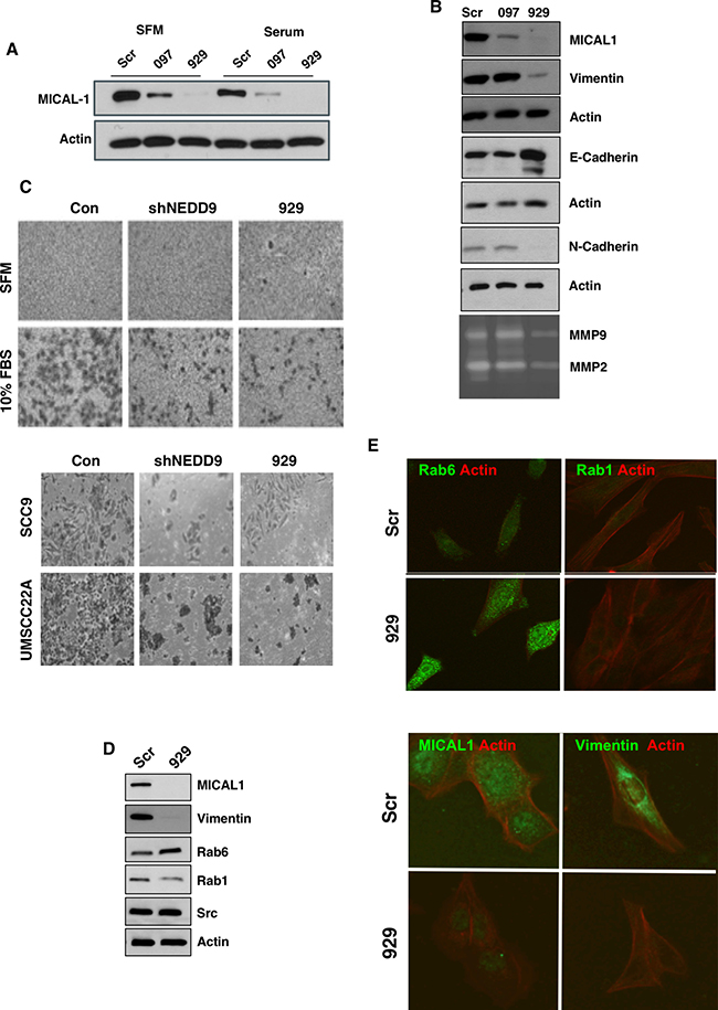 MICAL1 knockdown reduces cell invasiveness and reduced MMP9 secretion.