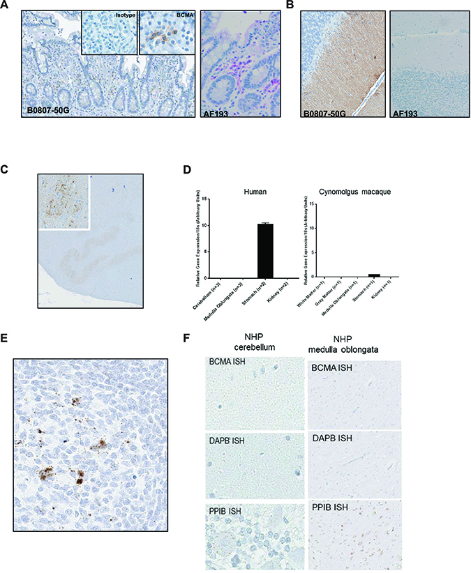 Immunohistochemical staining with two commercially available anti-BCMA antibodies show disparate staining within the brain.