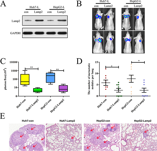 Lamp2 overexpression in luciferase-labeled Huh7 and HepG2 cells inhibits lung metastasis.