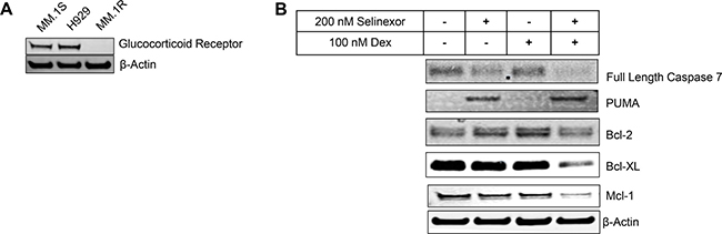 SEL-DEX synergizes to induce cell death in cells expressing GR.